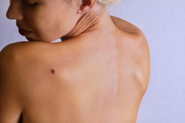 7 Natural Remedies for Skin Tags