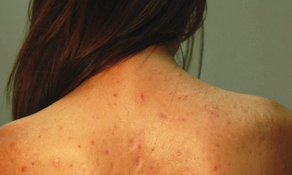 Bacne Cure: Natural Remedies And Treatment To Eliminate Back Acne