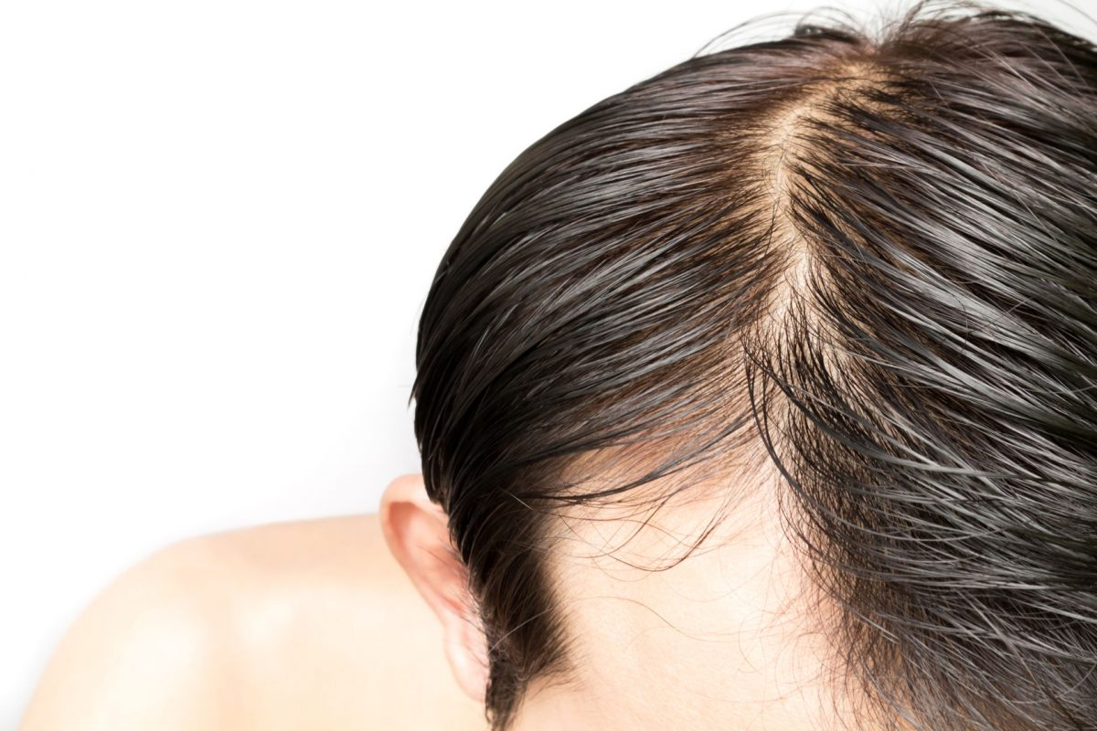 oily-scalp-treatment-essential-remedies-and-tips