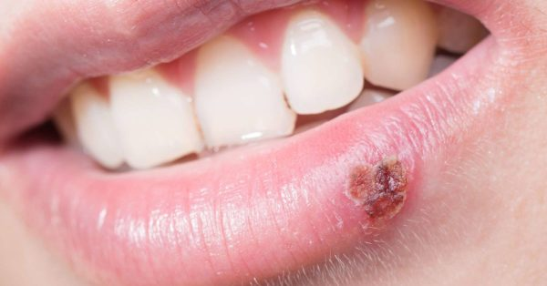 Why do I keep getting cold sores?