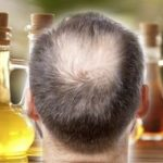 Hair loss treatment: The herbal supplement proven to promote hair growth