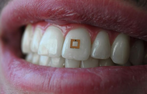 Better Diet Data Via Tooth-Mounted Sensors