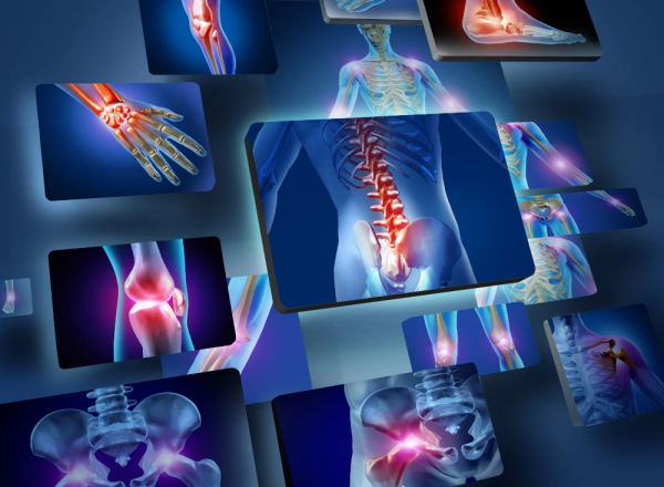 Foods and botanicals for inflammation: Expert recommendations